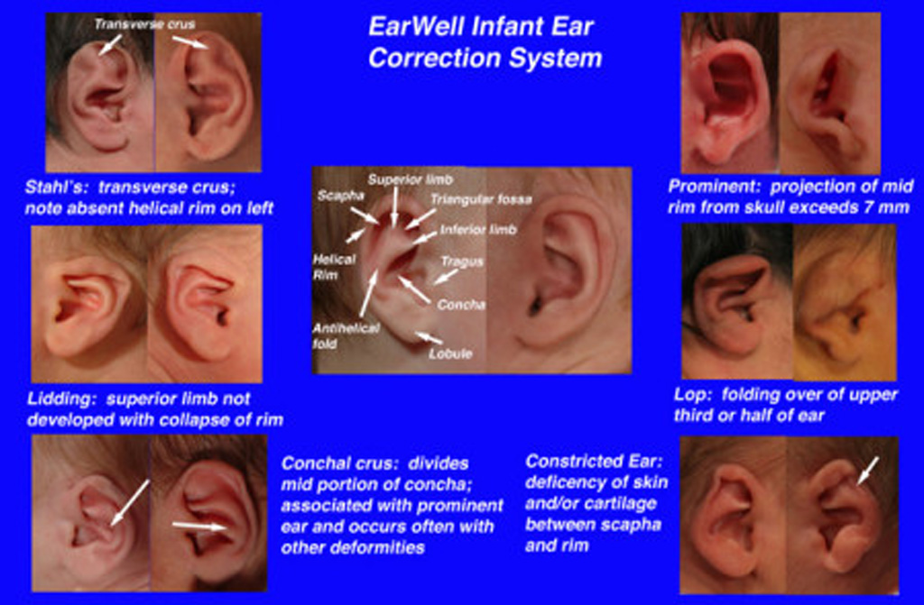 Is Your Baby a Candidate for EarWell? Nonsurgical Ear molding