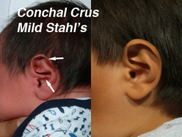 Conchal Crus Ear Deformity in Newborn Infants