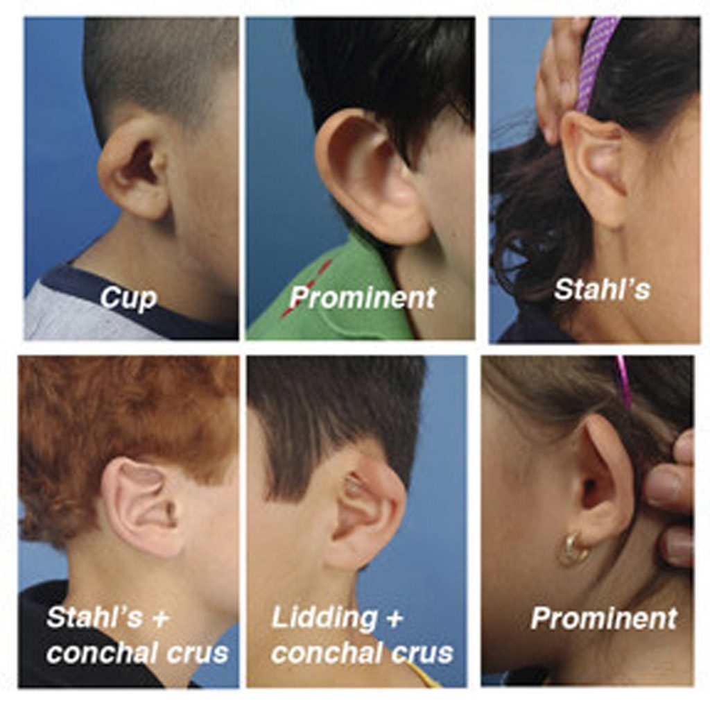 Untreated Infant Ears in Later Life