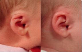 infants treated non-surgically with the EarWell Infant Ear Deformity Correction system