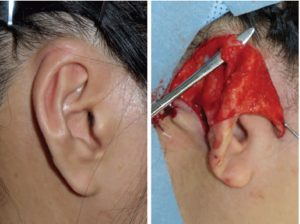 Newborn Infant with Cryptotia Treated with the EarWell Correction System