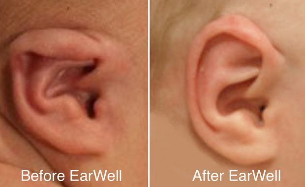 Video gallery EarWell center of Texas before and after Earwell corrrection
