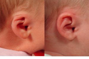 Cryptotia ear deformity in newborn infants is an ear deformity