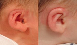 Cryptotia ear deformity in newborn infants
