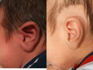 Mixed Ear Deformity in Newborn Infants