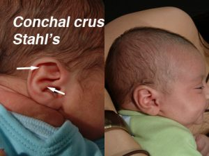 Stahl's Ear Deformity in Newborn Infants