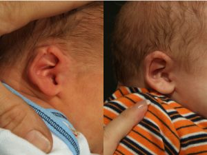 Helical Rim Ear Deformity in Newborn Infants