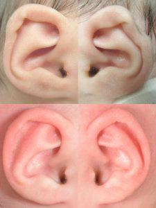 Conchal Crus Ear Deformity in babies