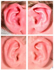 Lidding Ear Deformity in babies